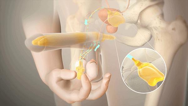 شكل دعامة العضو الذكري الهيدروليكية بعد تركيبها داخل القضيب