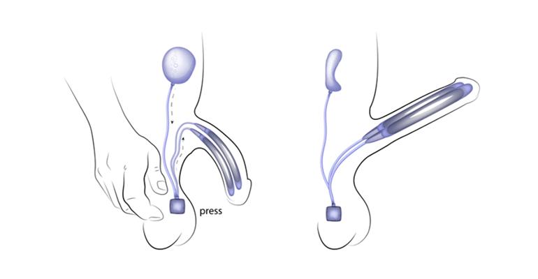 جراحة دعامة العضو الذكري